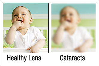 Healthy Lens Cataracts